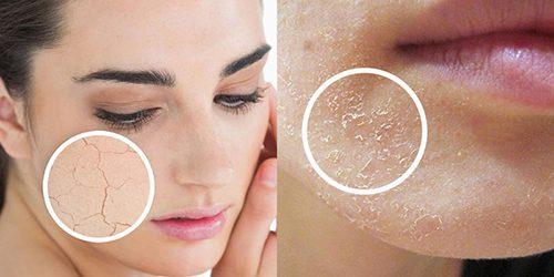 Da khô là như thế nào? Cách nhận biết da khô