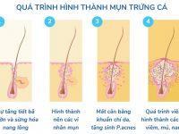 Bỏ túi ngay 3 cách trị mụn trứng cá tại nhà cực hiệu quả