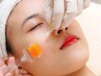 Cách chăm sóc da mặt sau khi lăn kim hiệu quả nhất